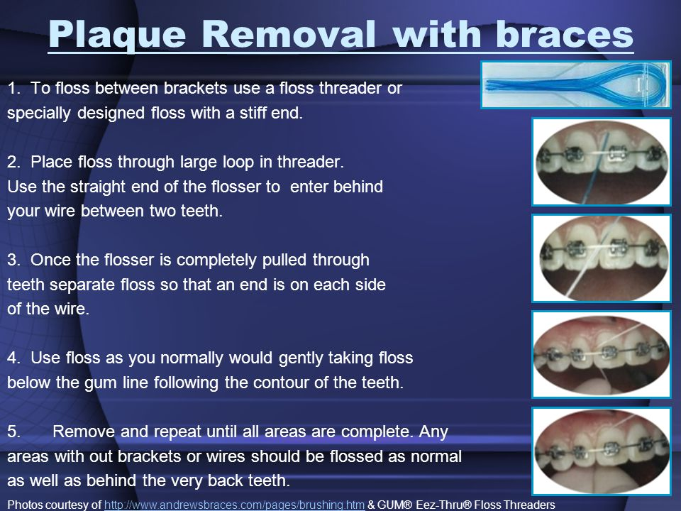 Plaque Removal with braces 1.
