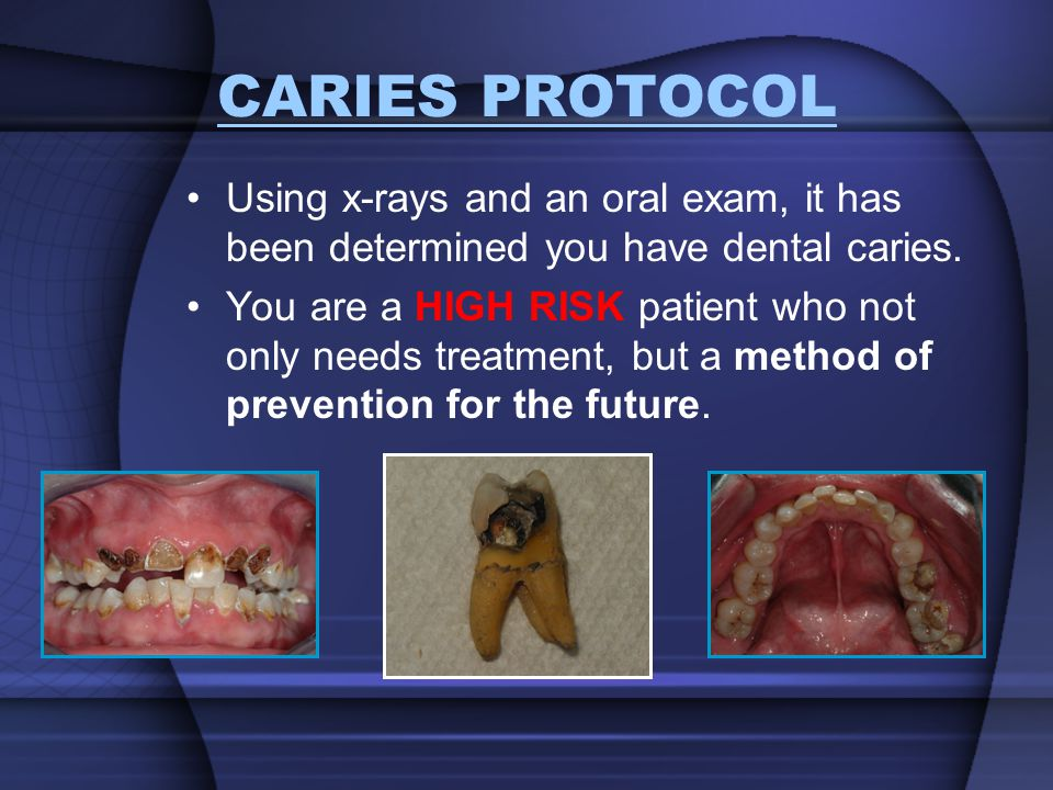 CARIES PROTOCOL Using x-rays and an oral exam, it has been determined you have dental caries. You are a HIGH RISK patient who not only needs treatment