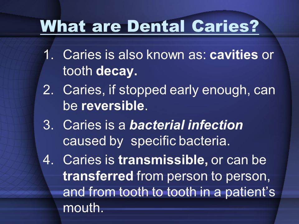 What are Dental Caries? 1.Caries is also known as: cavities or tooth decay. 2.Caries, if stopped early enough, can be reversible. 3.Caries is a bacter