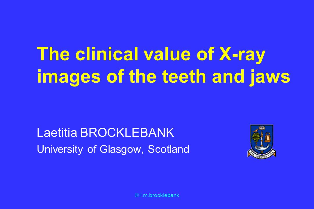 © l.m.brocklebank The clinical value of X-ray images of the teeth and jaws Laetitia BROCKLEBANK University of Glasgow, Scotland
