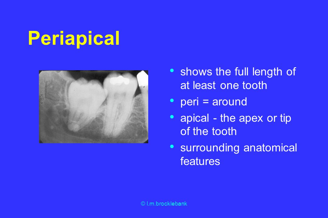 © l.m.brocklebank Periapical shows the full length of at least one tooth peri = around apical - the apex or tip of the tooth surrounding anatomical fe
