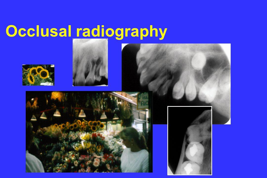 © l.m.brocklebank Occlusal radiography