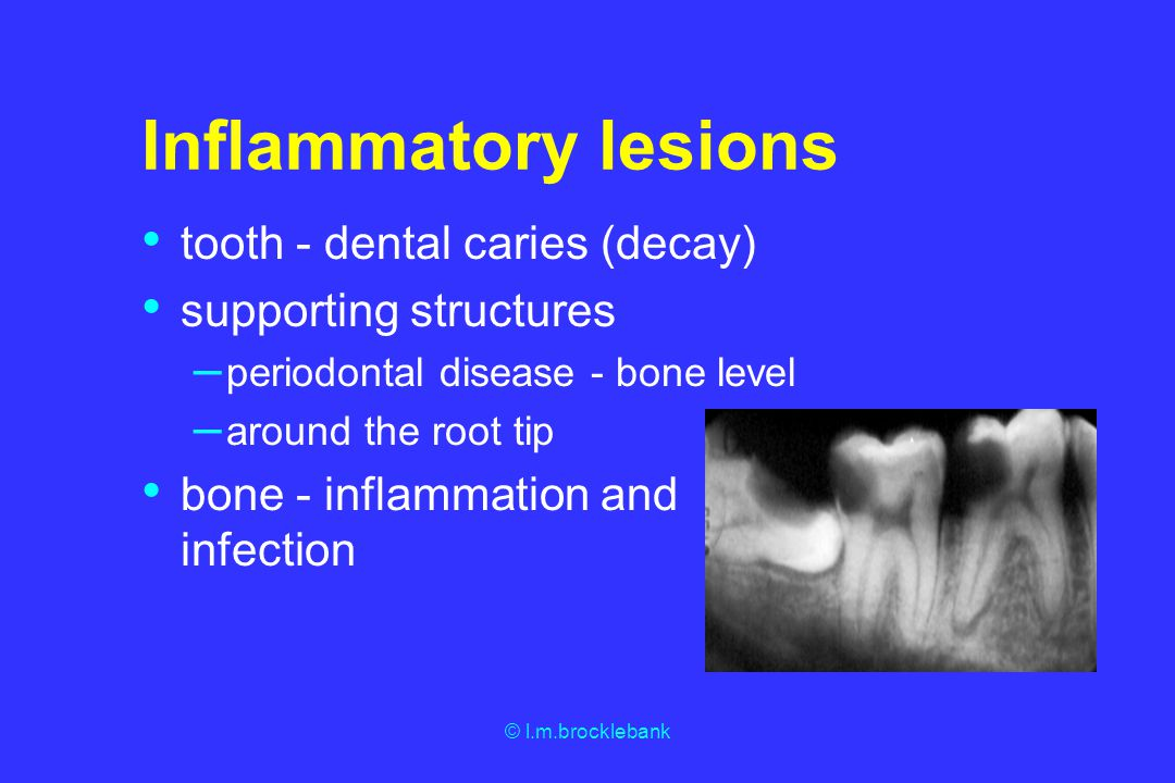 © l.m.brocklebank Inflammatory lesions tooth - dental caries (decay) supporting structures – periodontal disease - bone level – around the root tip bo