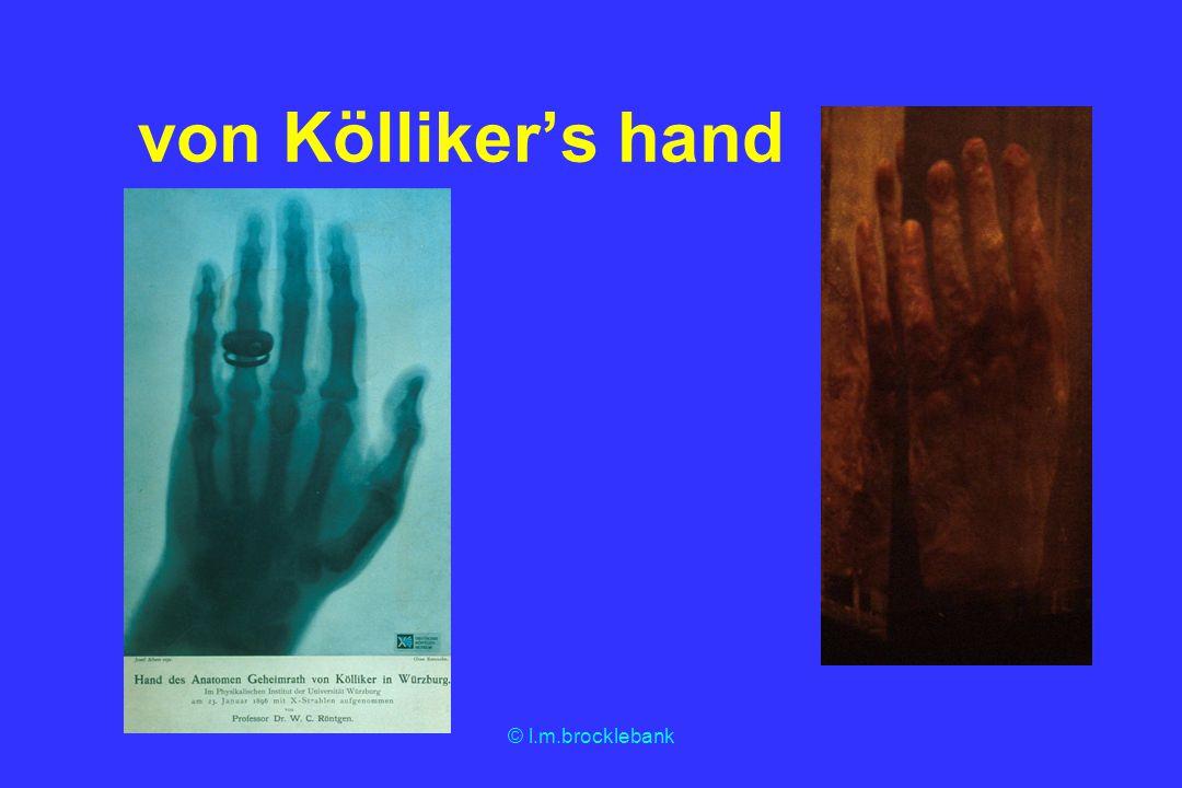 © l.m.brocklebank von Köllikers hand