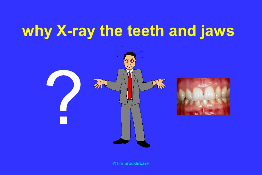 © l.m.brocklebank Abnormalities affecting the teeth and jaws developmental traumatic inflammatory cystic neoplastic osteodystrophies metabolic/systemic idiopathic foreign bodies