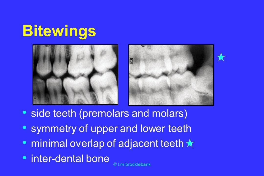 © l.m.brocklebank Bitewings side teeth (premolars and molars) symmetry of upper and lower teeth minimal overlap of adjacent teeth inter-dental bone