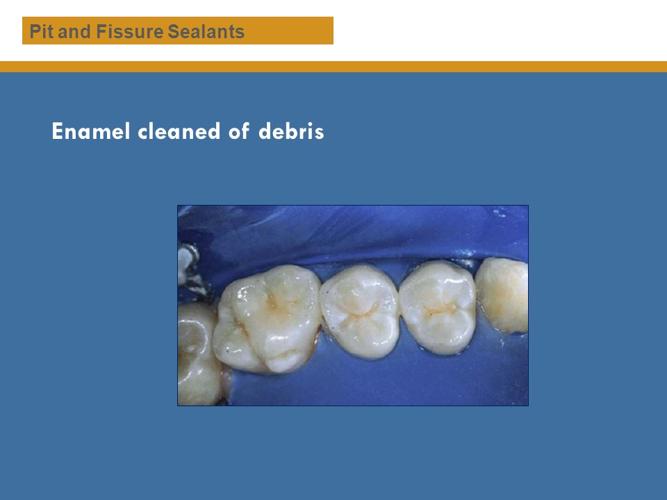 Enamel cleaned of debris Pit and Fissure Sealants