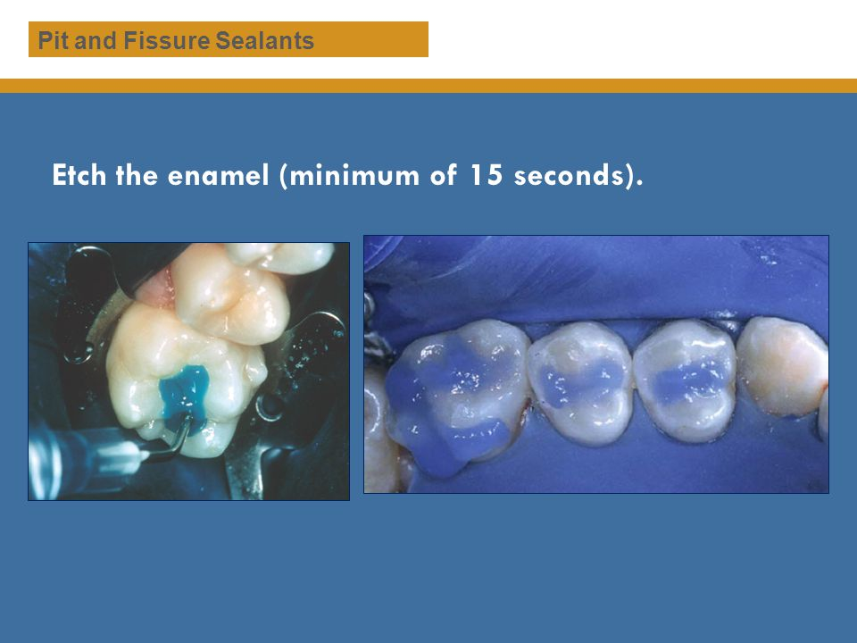 Etch the enamel (minimum of 15 seconds). Pit and Fissure Sealants