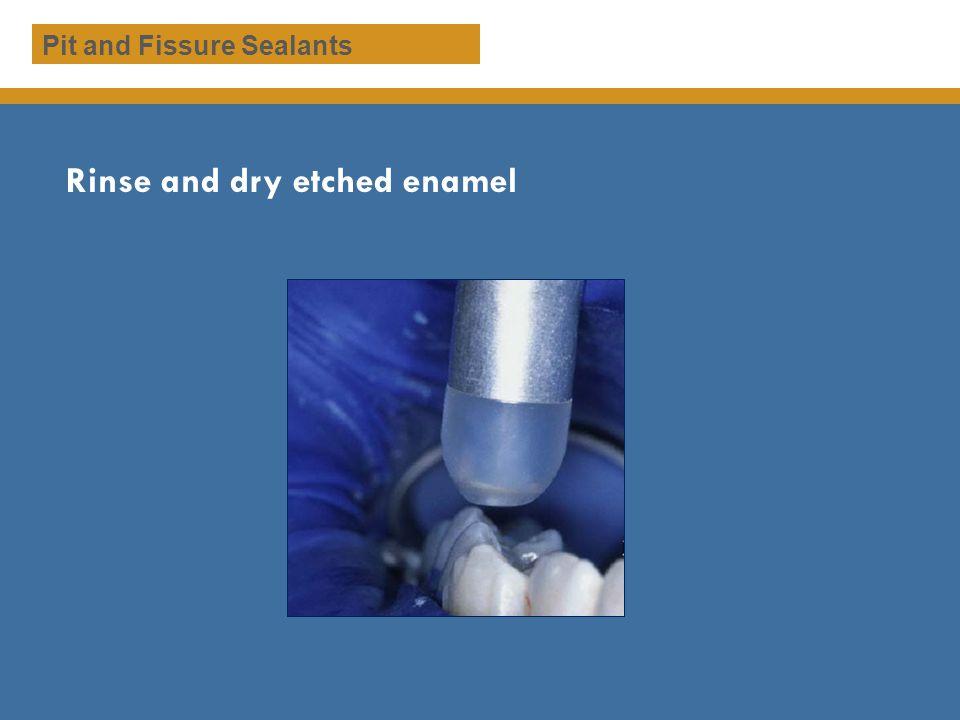 Rinse and dry etched enamel Pit and Fissure Sealants