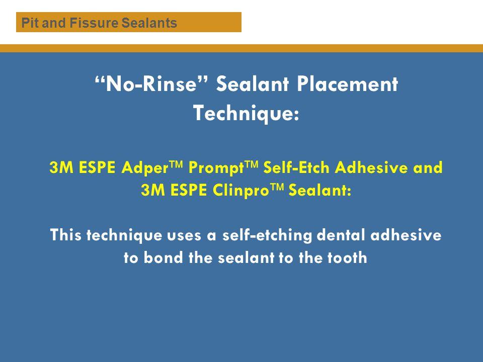 No-Rinse Sealant Placement Technique: 3M ESPE Adper Prompt Self-Etch Adhesive and 3M ESPE Clinpro Sealant: This technique uses a self-etching dental a