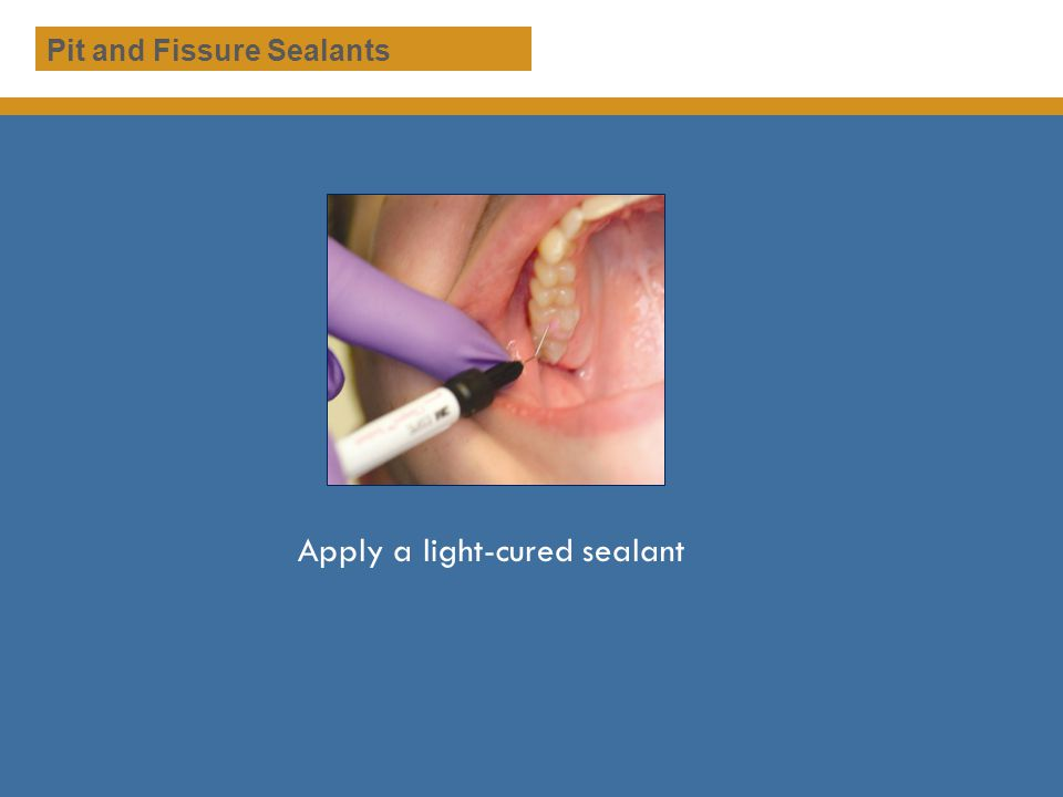 Apply a light-cured sealant Pit and Fissure Sealants
