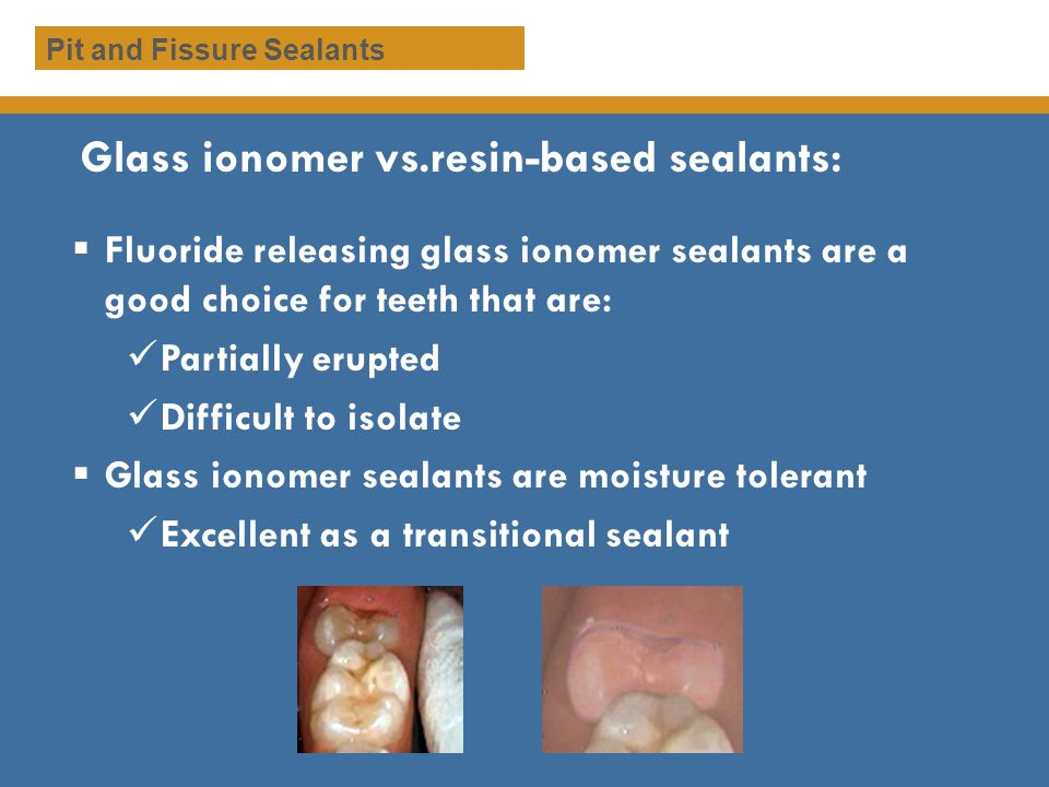 Gently rinse etchant and look for a frosty white appearance Pit and Fissure Sealants