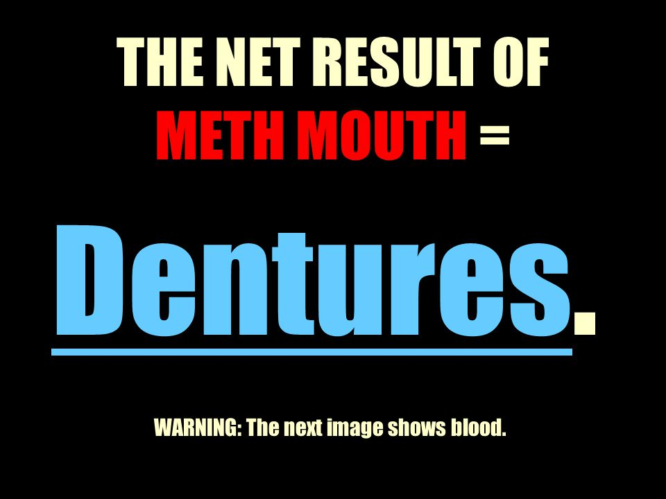 THE NET RESULT OF METH MOUTH = Dentures. WARNING: The next image shows blood.