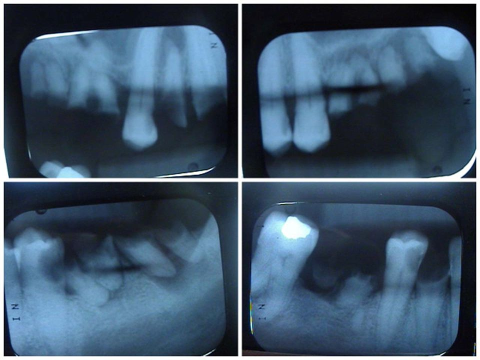 Ralphs X-Rays can show the devastation deep to the root and make a clear visual that teeth are being literally eaten away.