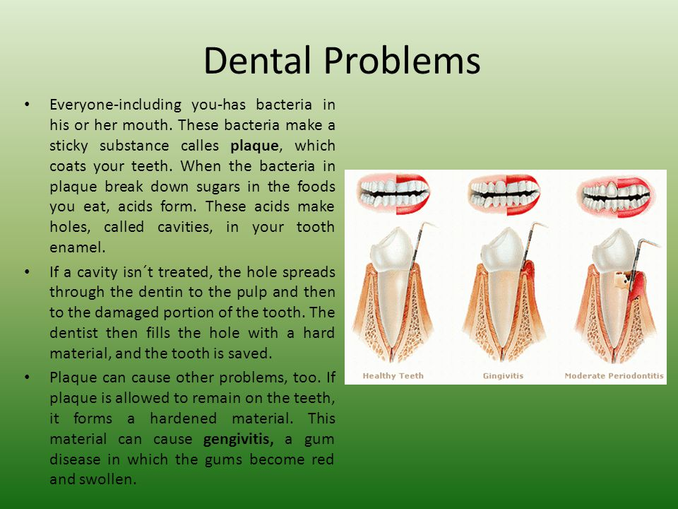Dental Problems Everyone-including you-has bacteria in his or her mouth.