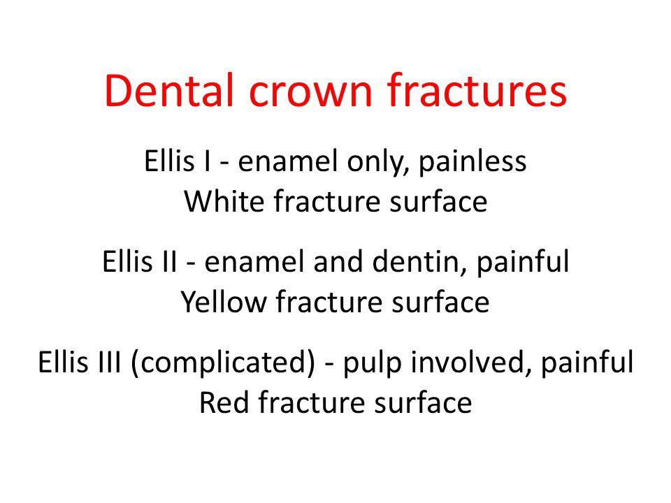 Dental crown fractures Ellis I - enamel only, painless White fracture surface Ellis II - enamel and dentin, painful Yellow fracture surface Ellis III