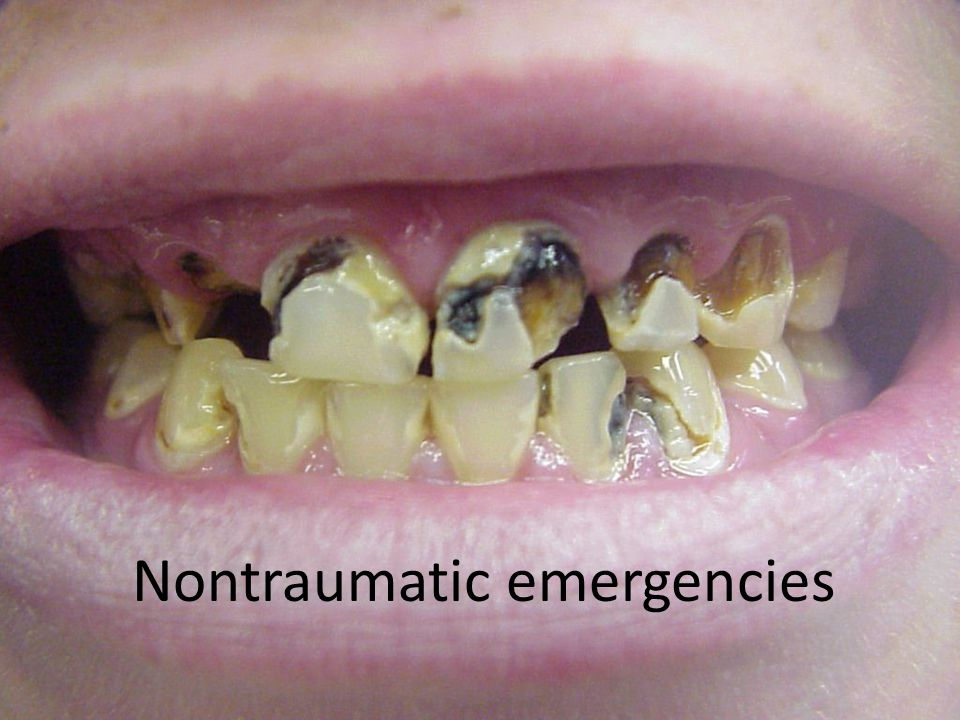 Pediatric dental emergency pearls Primary dentition consists of 20 teeth (2 incisors, 1 canine, 2 molars per quadrant) Eruption begins ~ 6 months complete by ~ 2 years Permanent dentition begins ~ 6 years Avulsed primary teeth should NOT be reimplanted