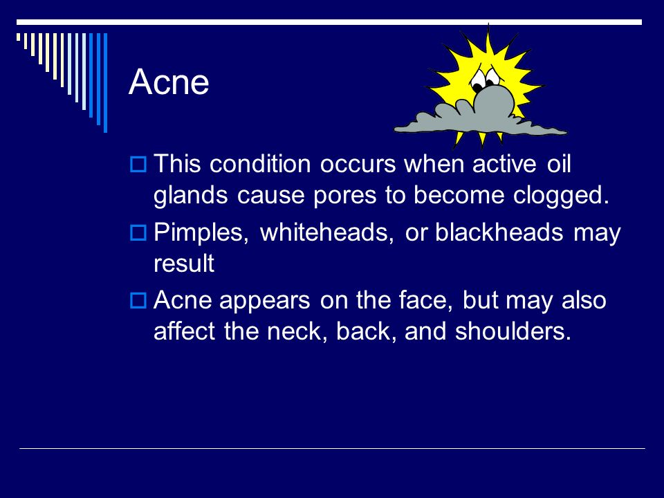 Acne This condition occurs when active oil glands cause pores to become clogged.
