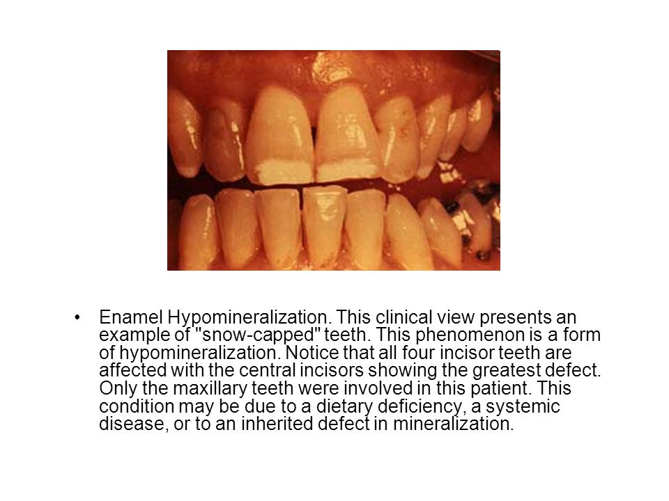 Enamel Hypomineralization. This clinical view presents an example of