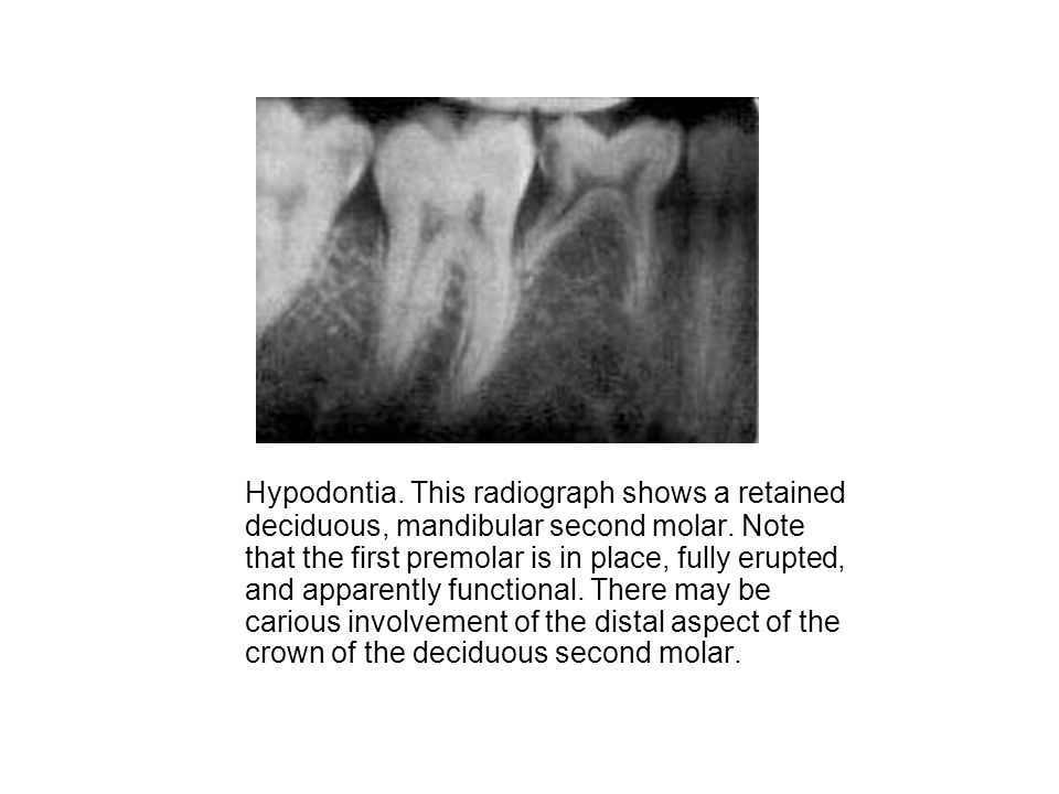 Hypodontia. This radiograph shows a retained deciduous, mandibular second molar. Note that the first premolar is in place, fully erupted, and apparent