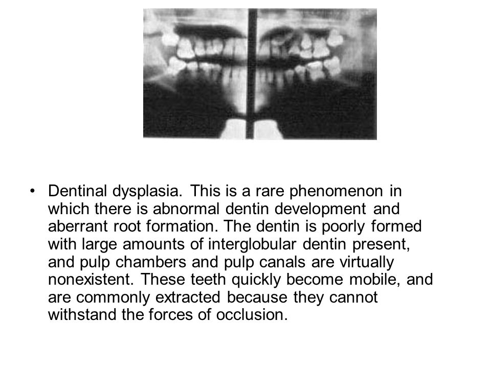 Dentinal dysplasia. This is a rare phenomenon in which there is abnormal dentin development and aberrant root formation. The dentin is poorly formed w