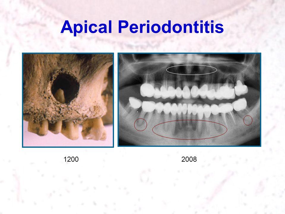 Apical Periodontitis 2008 1200