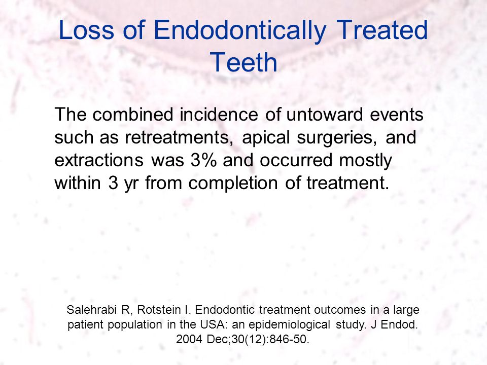 Loss of Endodontically Treated Teeth Salehrabi R, Rotstein I. Endodontic treatment outcomes in a large patient population in the USA: an epidemiologic