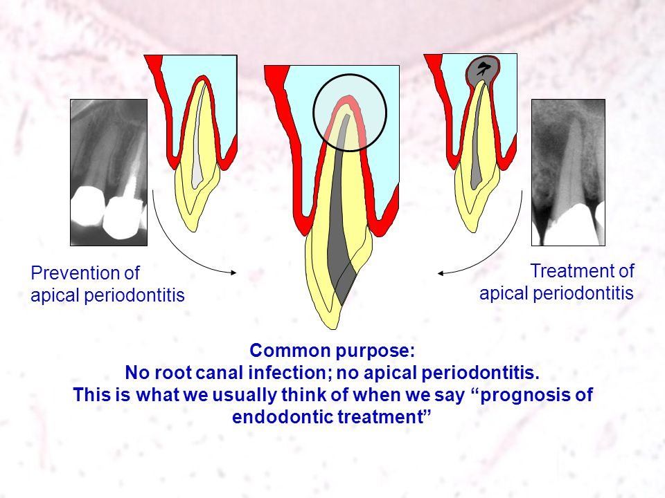 Treatment of apical periodontitis Prevention of apical periodontitis Common purpose: No root canal infection; no apical periodontitis. This is what we