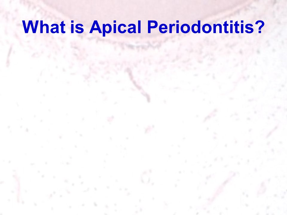 What is Apical Periodontitis?