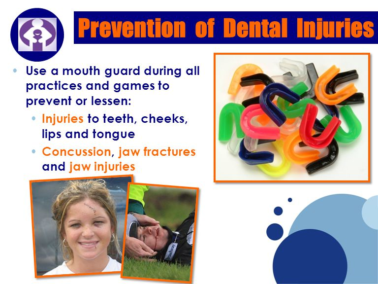 Company LOGO Prevention of Dental Injuries Use a mouth guard during all practices and games to prevent or lessen: Injuries to teeth, cheeks, lips and tongue Concussion, jaw fractures and jaw injuries