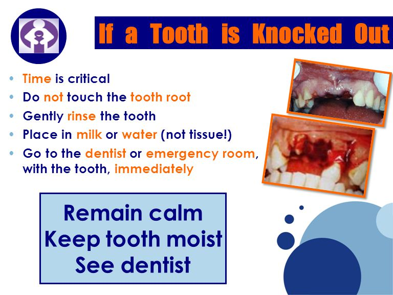 Company LOGO If a Tooth is Knocked Out Time is critical Do not touch the tooth root Gently rinse the tooth Place in milk or water (not tissue!) Go to the dentist or emergency room, with the tooth, immediately Remain calm Keep tooth moist See dentist