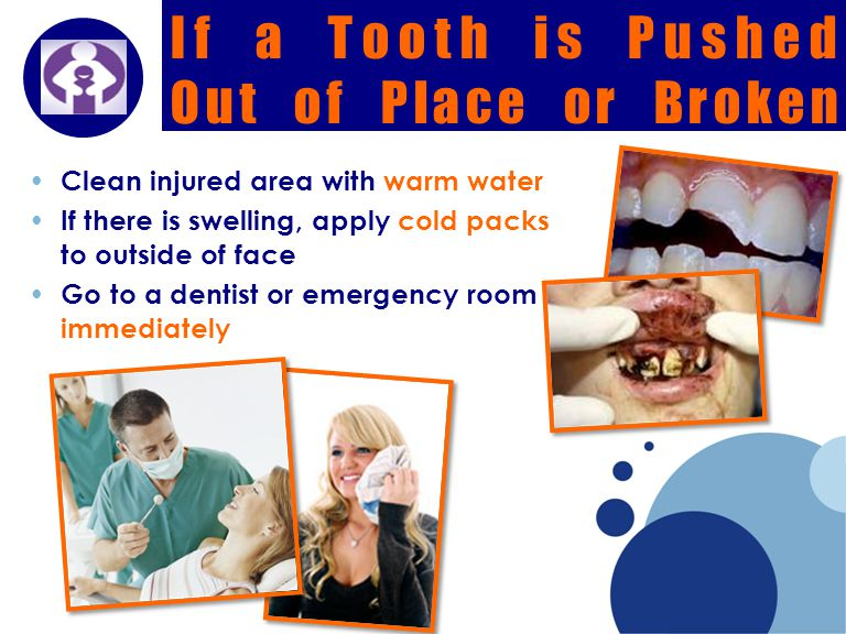 Company LOGO If a Tooth is Pushed Out of Place or Broken Clean injured area with warm water If there is swelling, apply cold packs to outside of face Go to a dentist or emergency room immediately