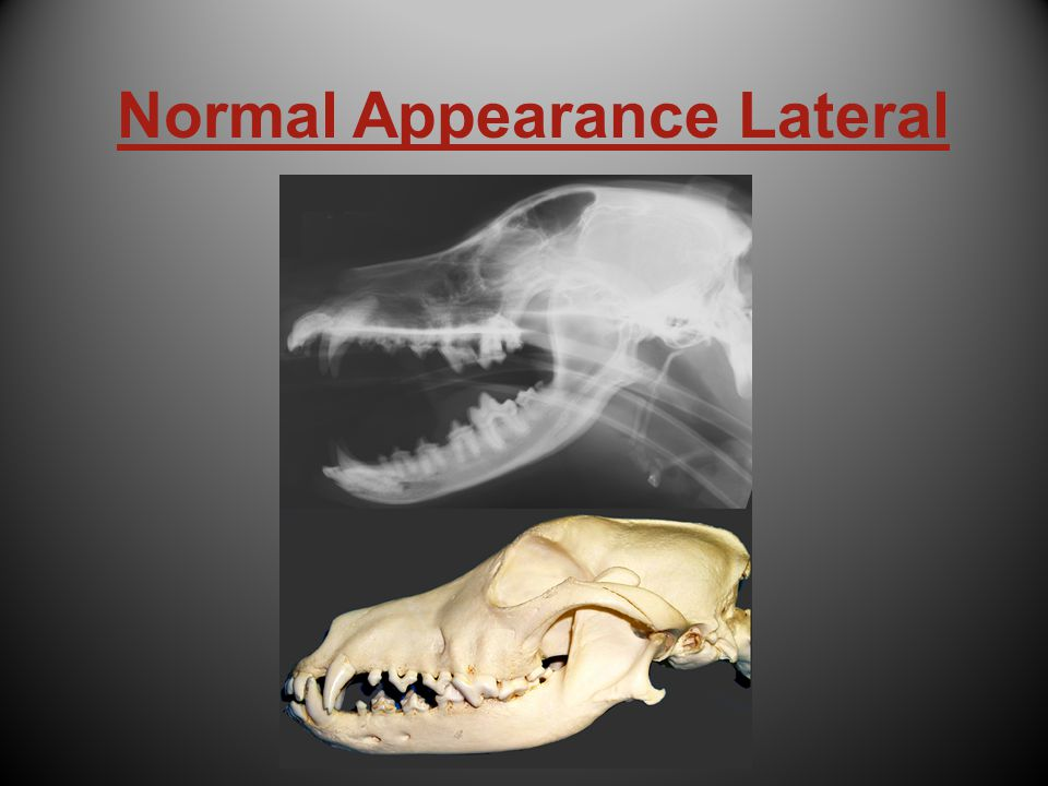 Normal Appearance Lateral