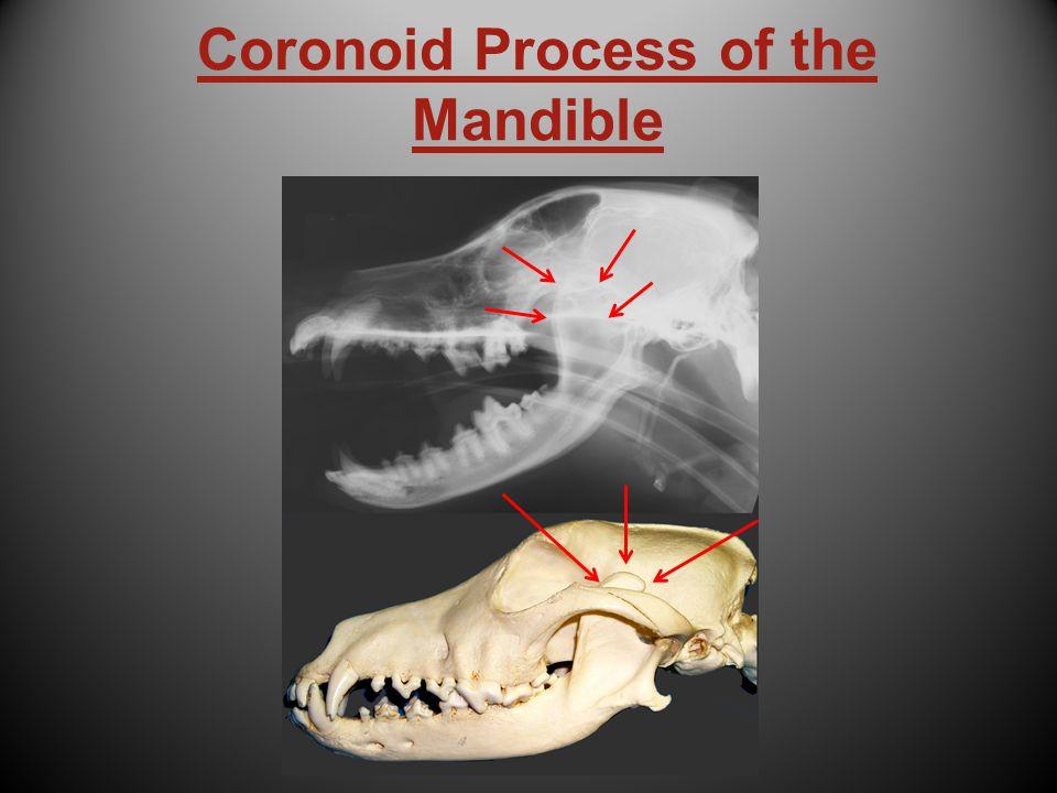 Coronoid Process of the Mandible