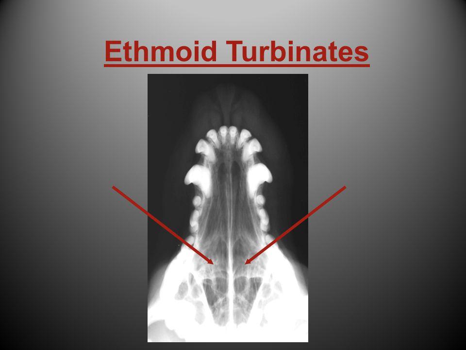 Ethmoid Turbinates