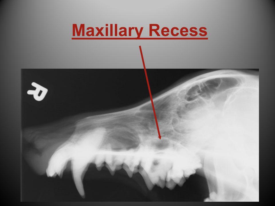 Maxillary Recess