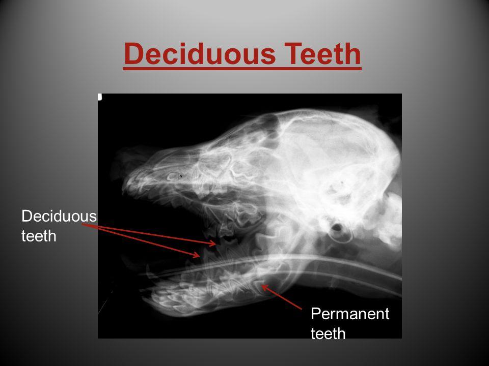 Deciduous teeth Permanent teeth Permanent teeth