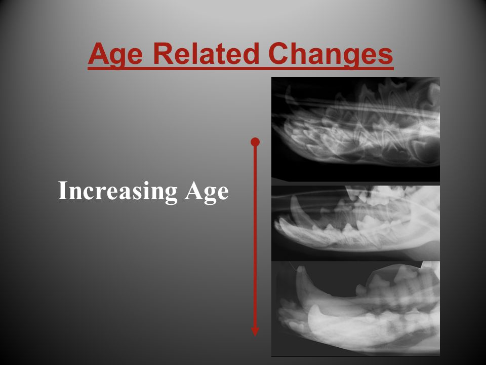 Age Related Changes Increasing Age
