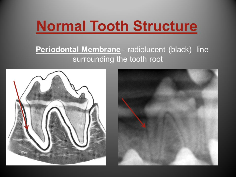 Normal Tooth Structure Periodontal Membrane - radiolucent (black) line surrounding the tooth root