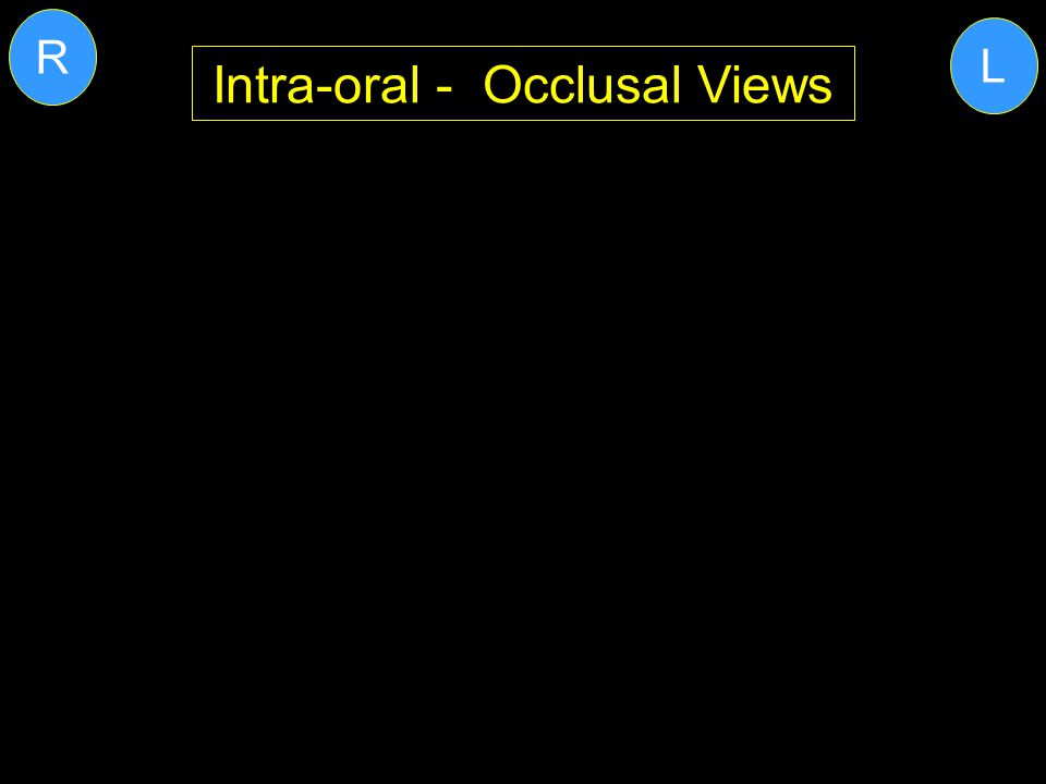 Intra-oral - Occlusal Views L R