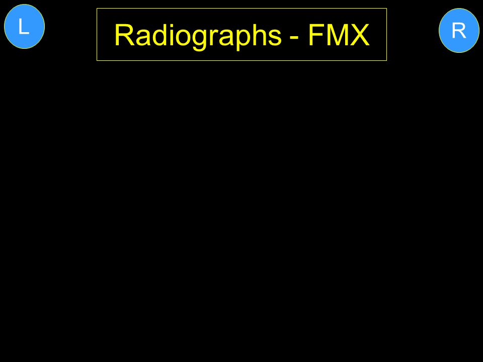 Radiographs - FMX R L