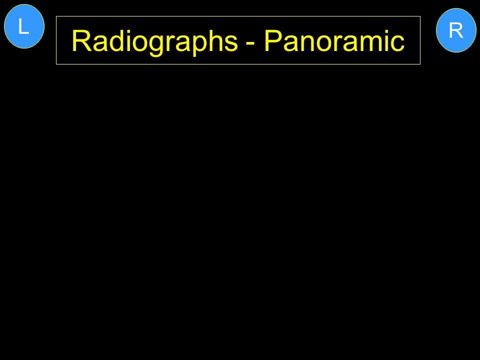 Radiographs - Panoramic R L