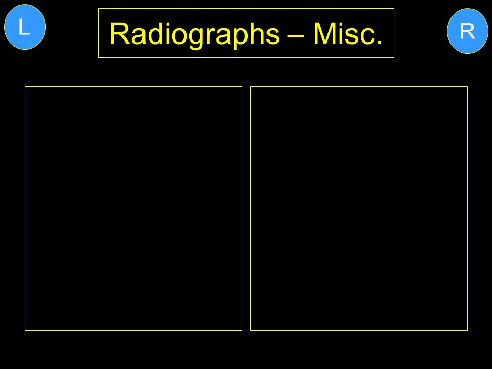 Radiographs – Misc. R L