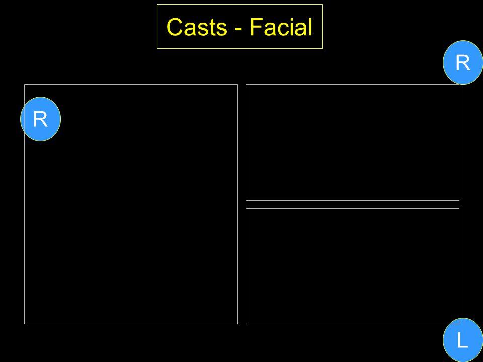 Casts - Facial L R R