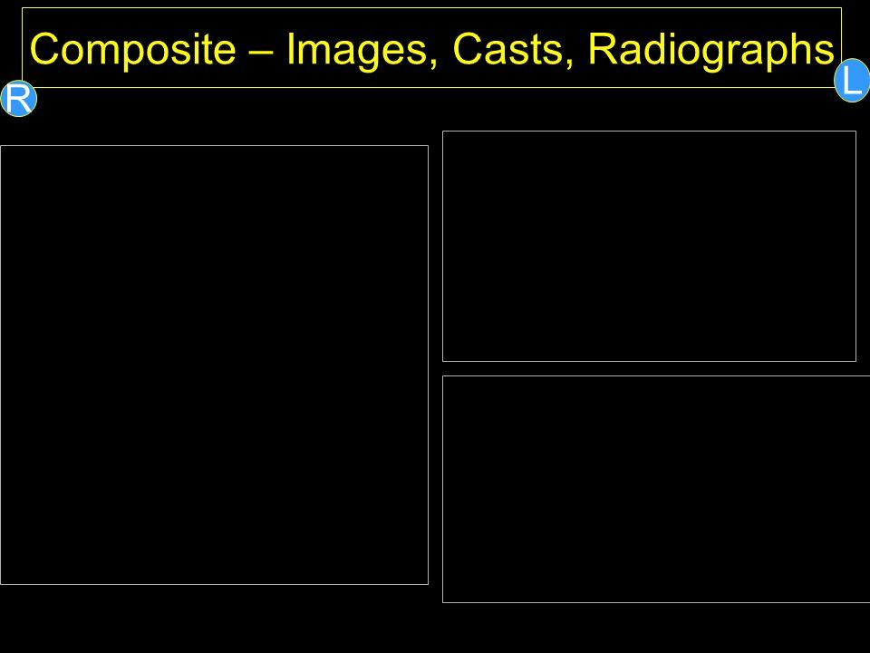 Composite – Images, Casts, Radiographs L R