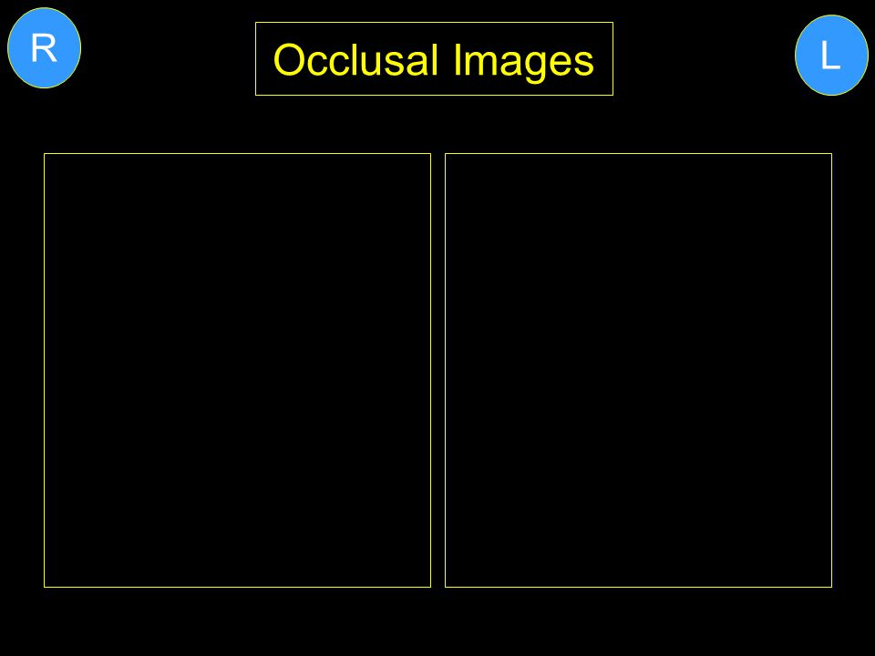 Occlusal Images L R