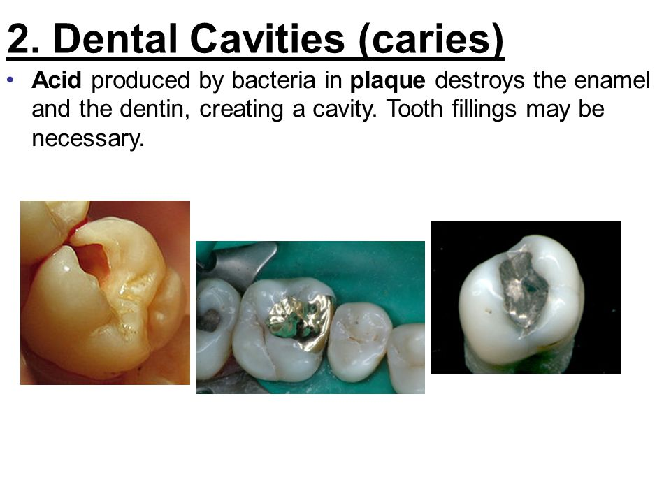 2. Dental Cavities (caries) Acid produced by bacteria in plaque destroys the enamel and the dentin, creating a cavity. Tooth fillings may be necessary
