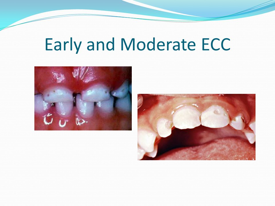 Early and Moderate ECC