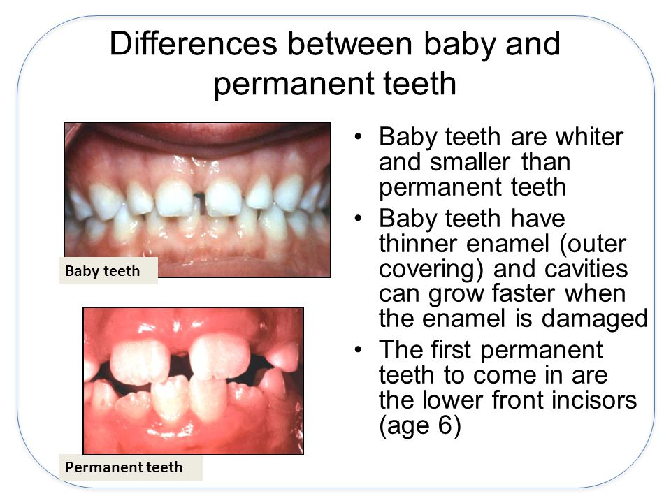 Differences between baby and permanent teeth Baby teeth are whiter and smaller than permanent teeth Baby teeth have thinner enamel (outer covering) and cavities can grow faster when the enamel is damaged The first permanent teeth to come in are the lower front incisors (age 6) Baby teeth Permanent teeth