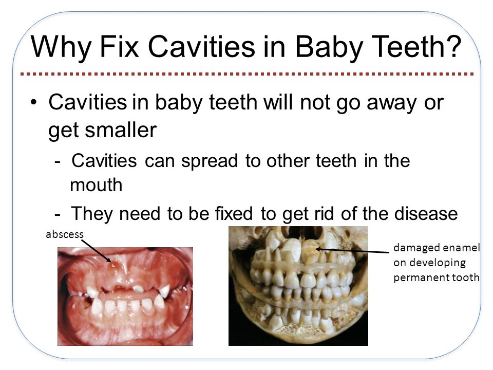 Why Fix Cavities in Baby Teeth.